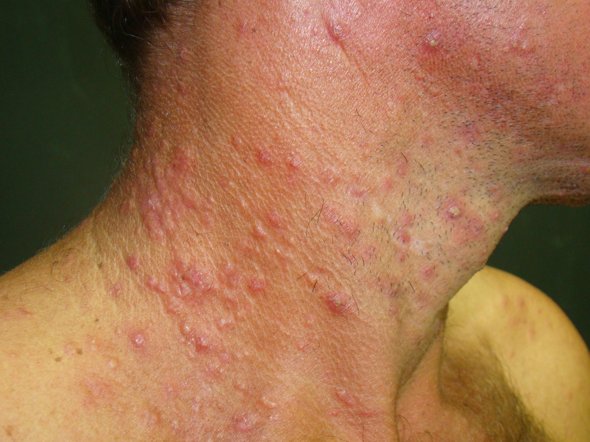 Cuidado com a Sífilis: Epidemia atinge BR e também no RN