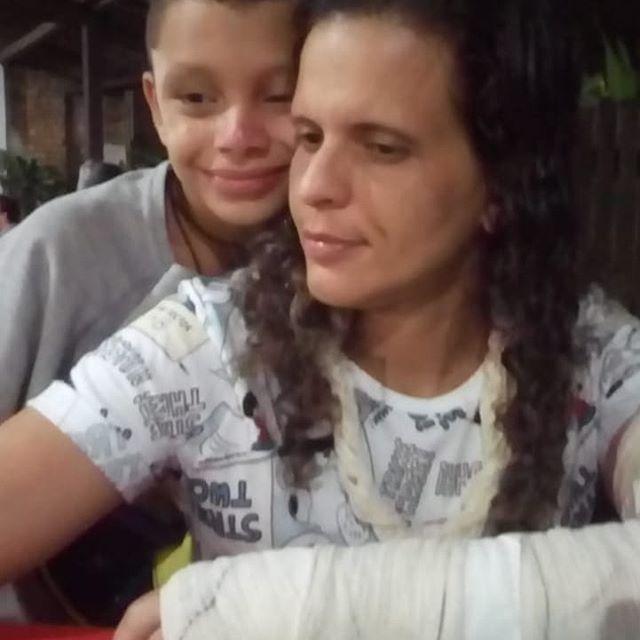 Casal de mulheres agredidas por vizinhos fazem campanha online para pagar os custos médicos